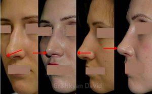 Ротация кончика носа