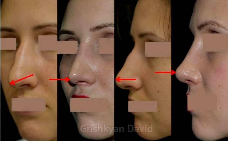 Ротация кончика носа фото до и после