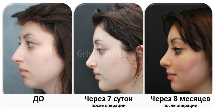 Липофилинг лица в Москве фото до и после