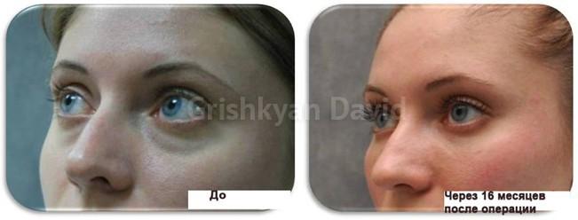 Липофилинг лица к клинике Гришкяна