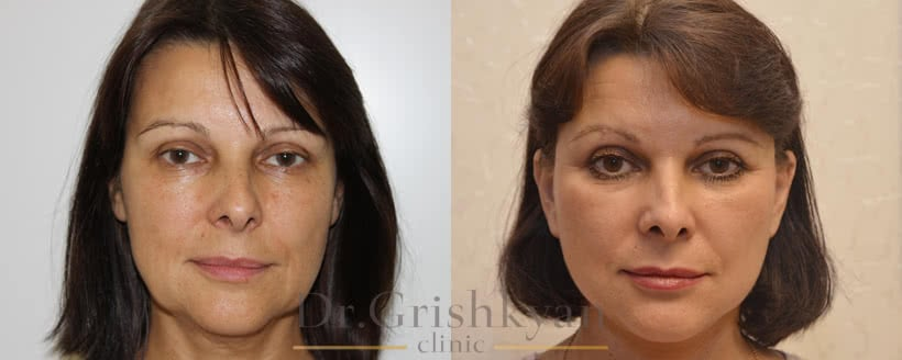 СМАС лифтинг фото до и после