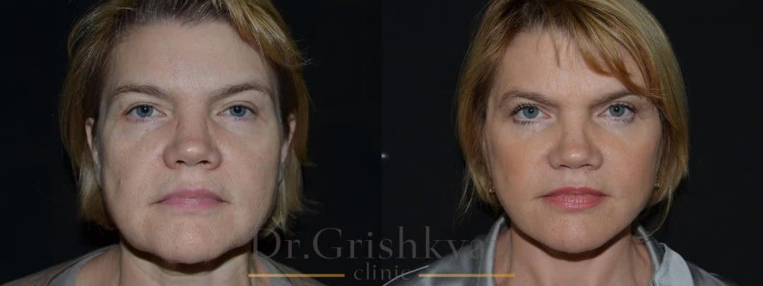 Хирургическая подтяжка лица в Москве в клинике доктора Гришкяна