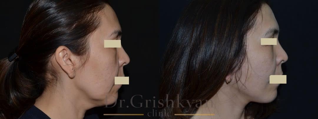 Фото до и после пластики лица