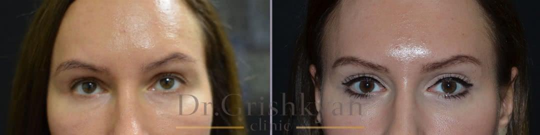 Пластика век – фото до и после