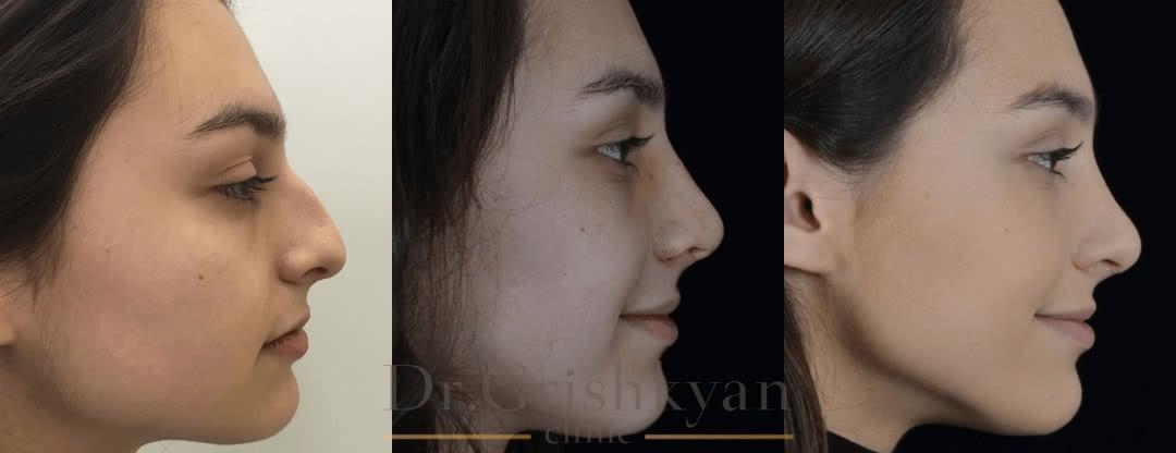 Фото Пластика носа фото до и после ринопластики