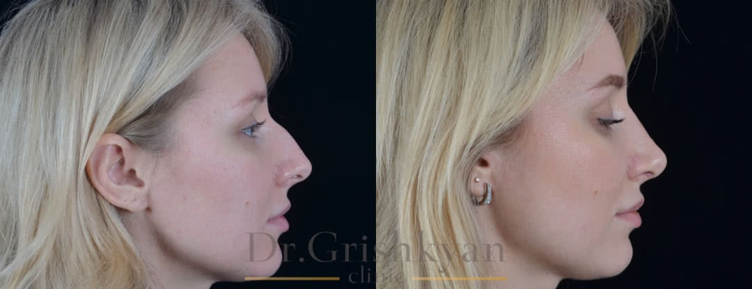Фото Фото до и после ринопластика