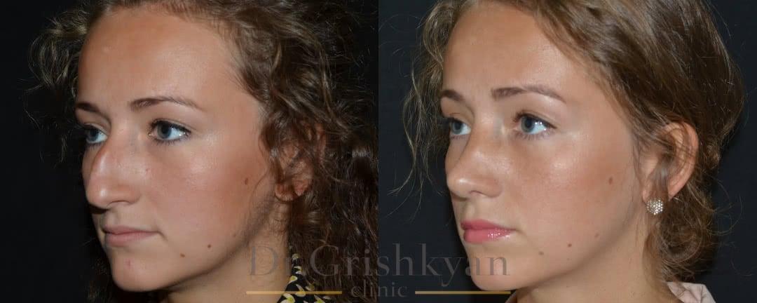 ДО и ПОСЛЕ ринопластика носа фото 2