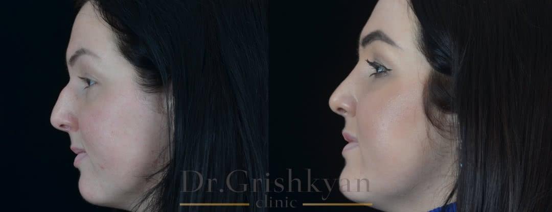 Фото до и после ринопластика