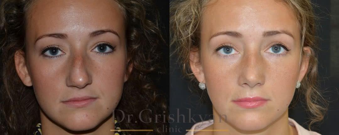 Пластика носа в Москве фото до и после