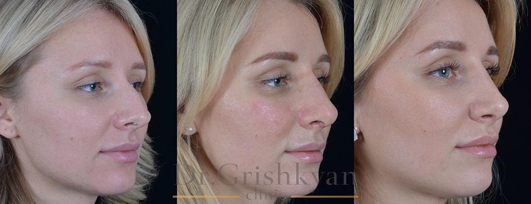 Фото до и после ринопластики: до/после снятия гипса (8дней), через 4 месяца после