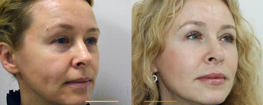 Фото до и после липофилинг лица
