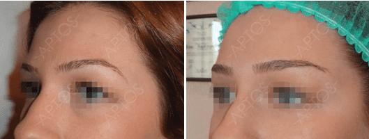 Процедура Aptos на различных зонах лица1