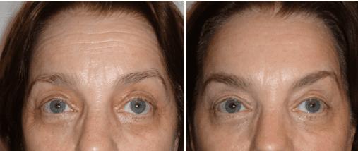 Процедура Aptos на различных зонах лица2