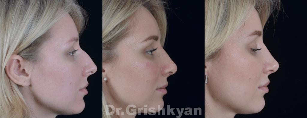 Ринопластика спинки носа цена в клинике в Москве