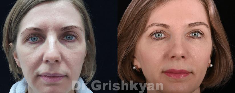 липофилинг лица в клинике в москве