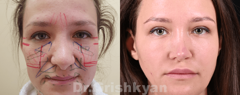 липофилинг носогубных складок в клинике в москве
