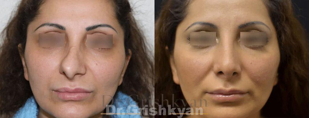 Повторная ринопластика спинки носа