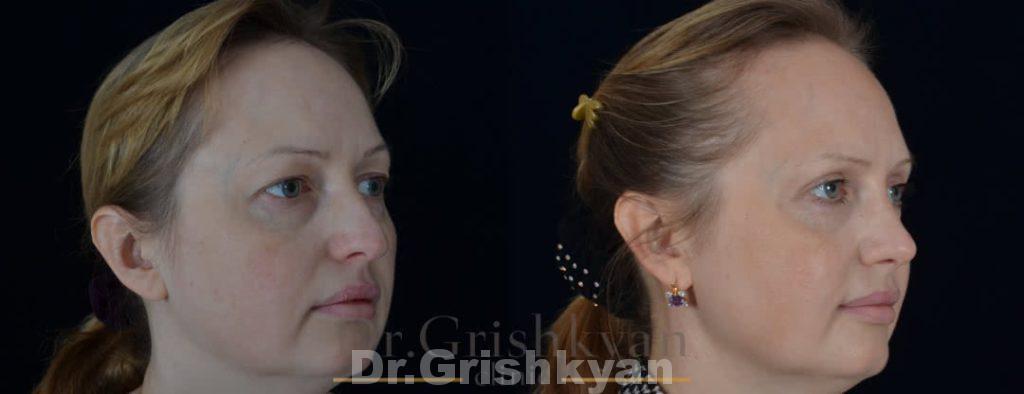 ринопластика носа до и после фото