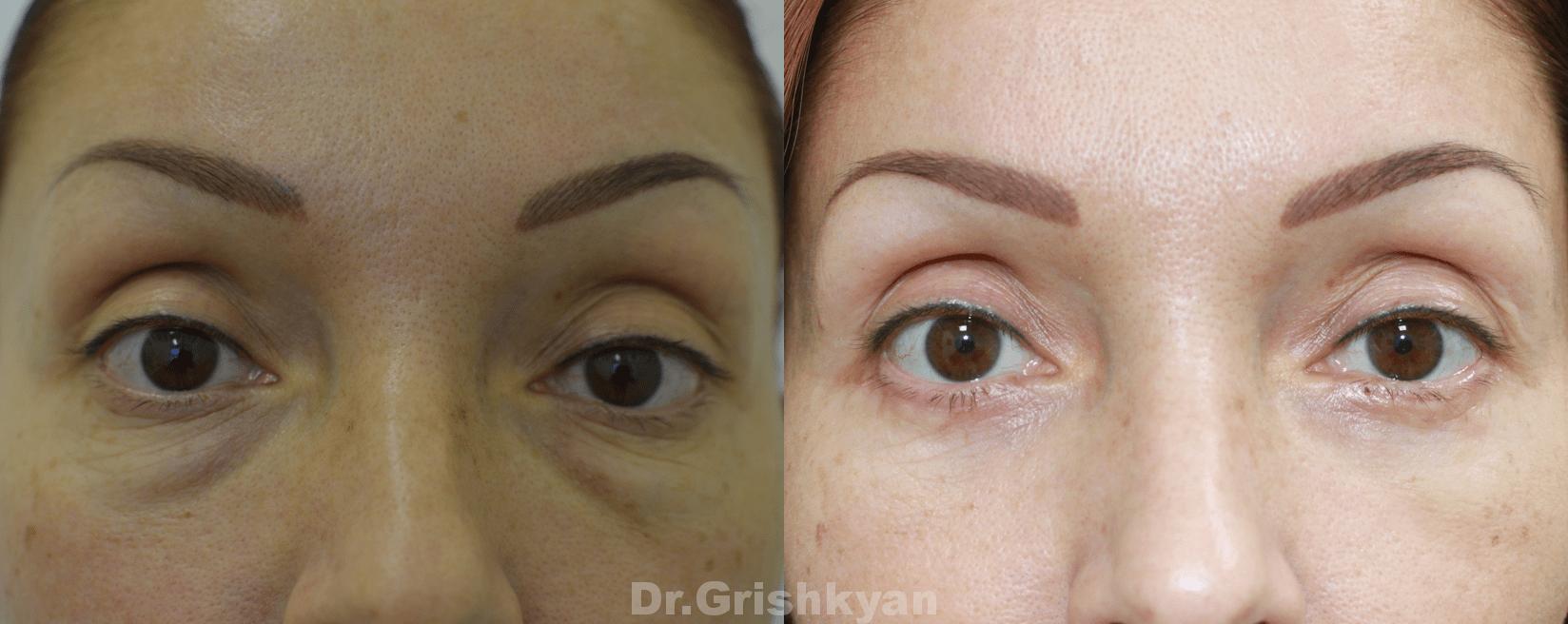 Фото Трансконъюктивальная нижняя блефаропластика фото до и после операции