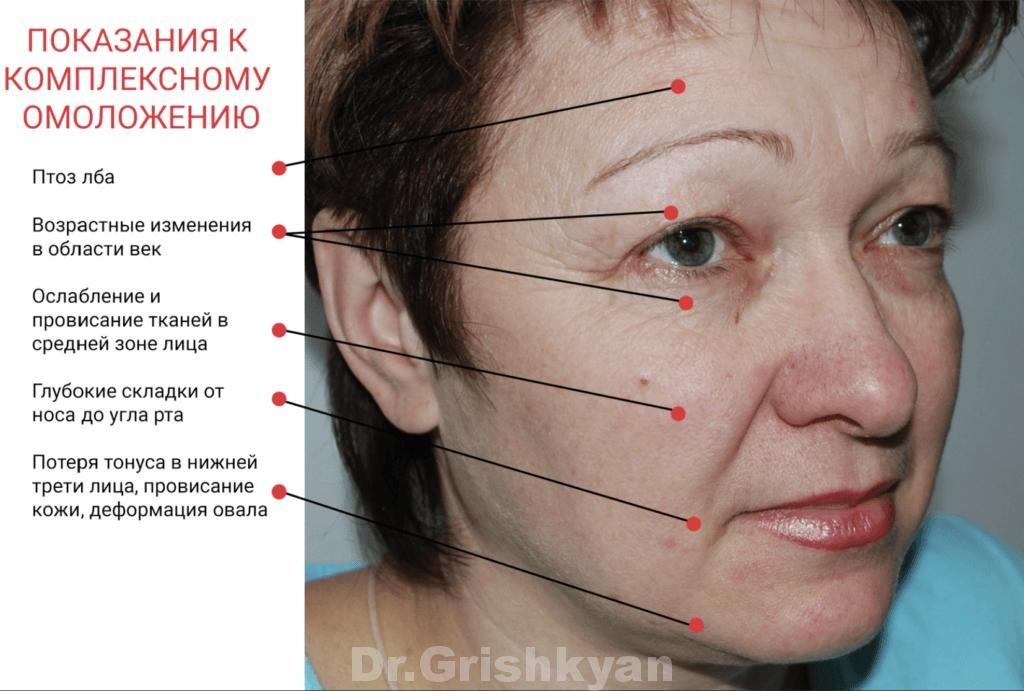 Хирургическая подтяжка лица, пластика лица в Москве