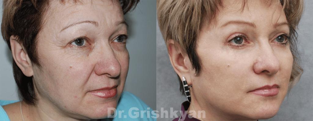 Хирургическая омоложения лица пластика лица в Москве