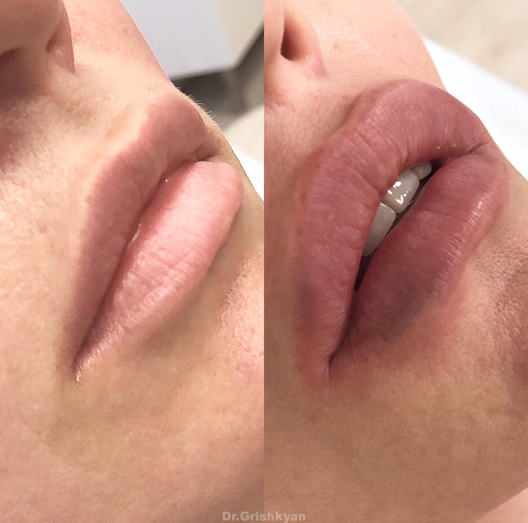 косметология губы