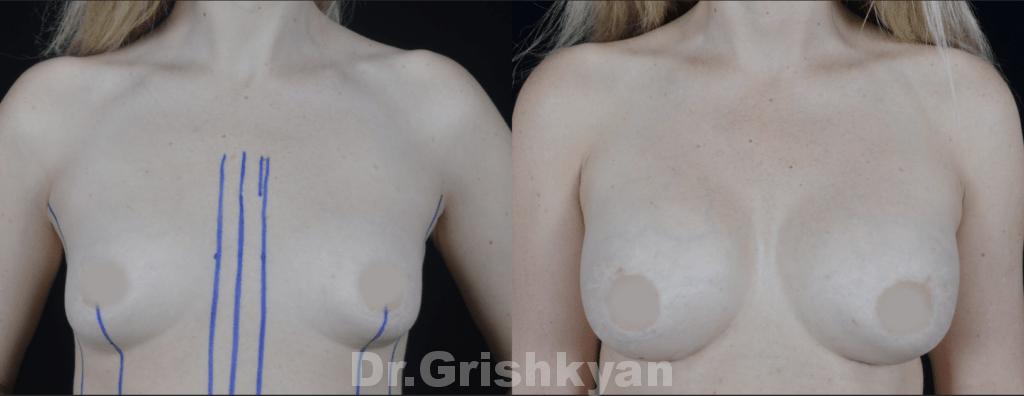 Увеличение груди протезы 350 сс