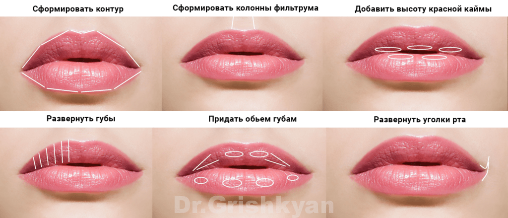 Увеличение губ на основе гиалуроновой кислоты