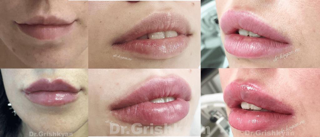 Увеличение губ на основе гиалуроновой кислоты фото до после