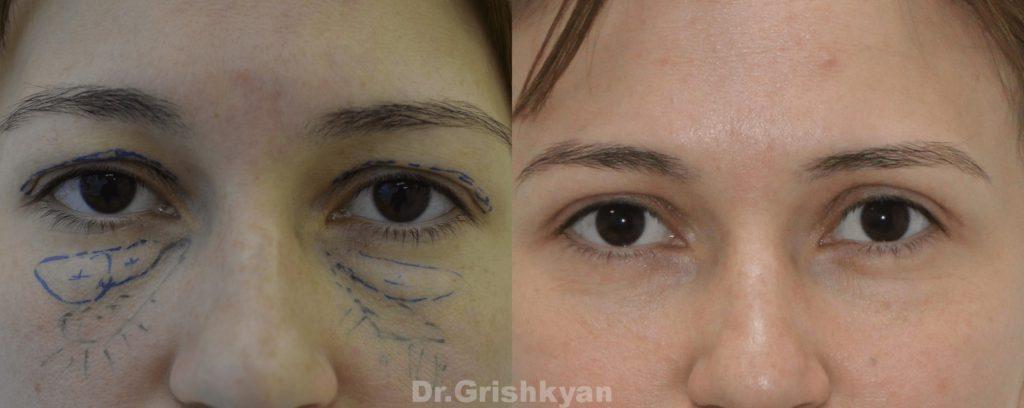 Блафаропластика до и после картинка