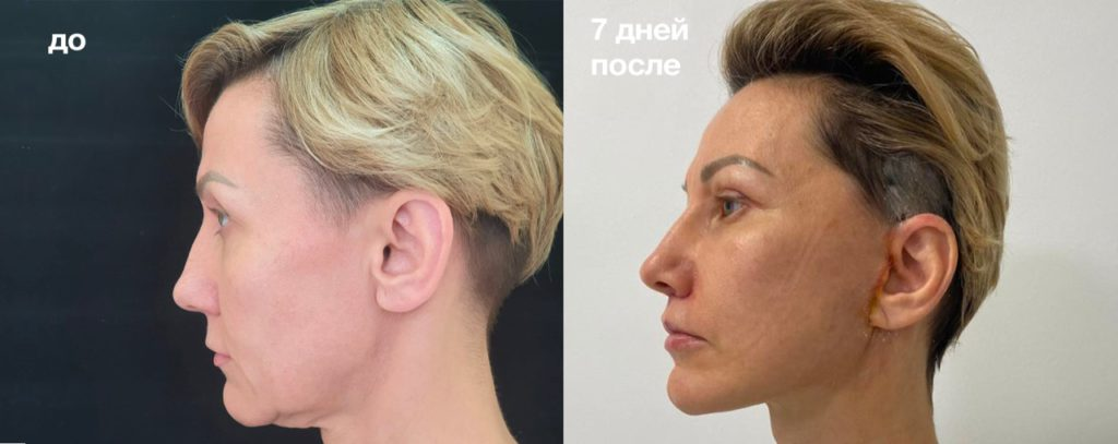 Подтяжка лица до и после