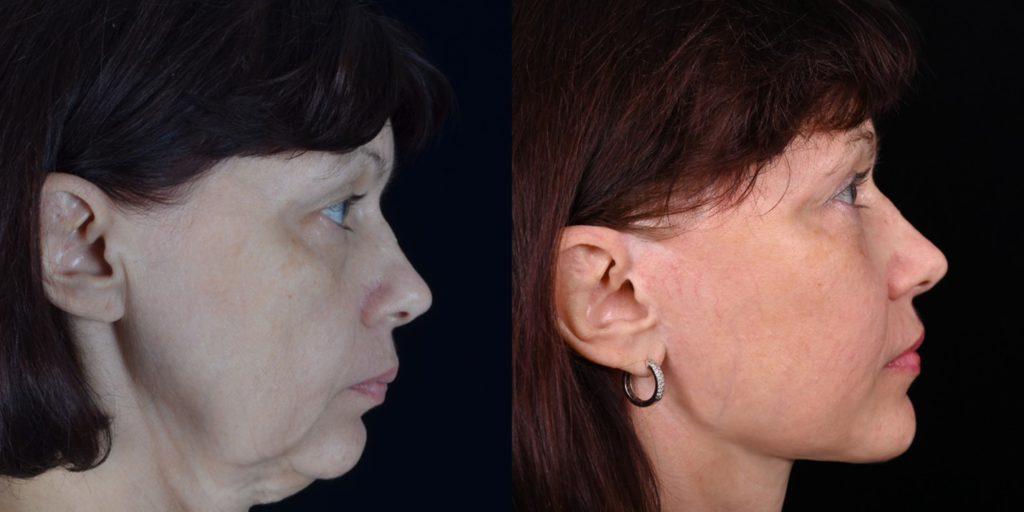Хирургическая подтяжка лица и шеи