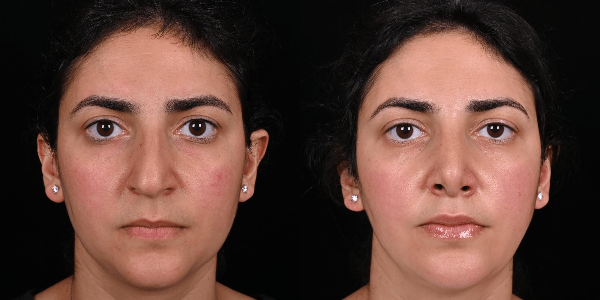 Фото Ринопластика с устранением асимметрии кончика и устранением горбинки носа